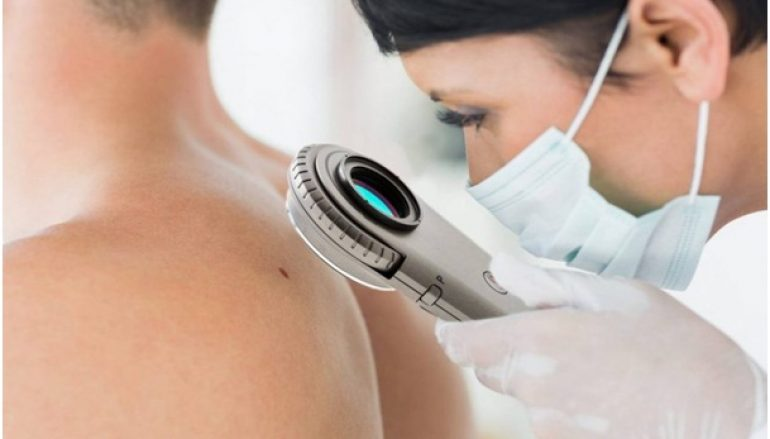 3 Tips To Detect and Prevent Skin Cancer