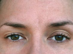 What are the Causes of Drooping Eyelid?